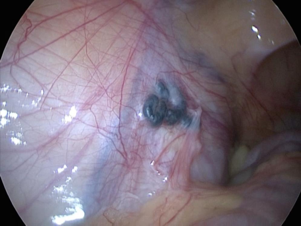 Что происходит с яичком после операции на варикоцеле