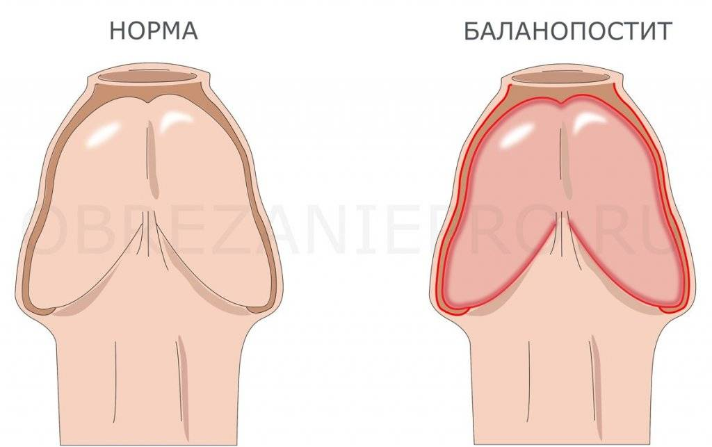 Воспаление крайней плоти у мужчин – эффективные способы лечения
