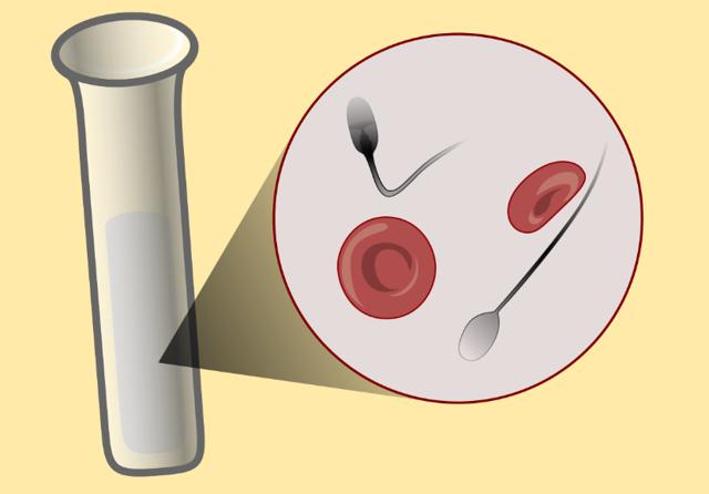 Почему у кого-то выделяется много спермы: нормально ли это?