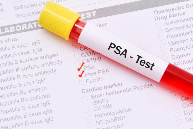 Профилактика рака простаты: что нужно знать, чтобы предупредить рак