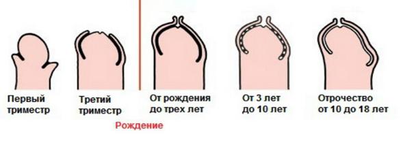 Красные пятна на головке у мужчин: фото и список возможных заболеваний