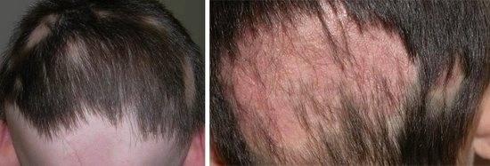 Фолликулит волосистой части головы: причины, симптомы, лечение