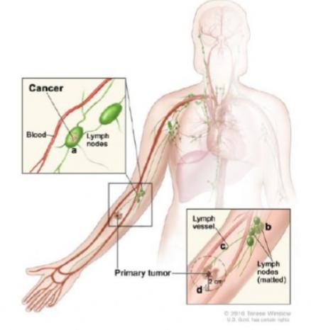 Меланома увеличены лимфоузлы средостения прогноз