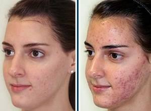 Улучшаем состояние кожи: способы применения дегтярного мыла от прыщей