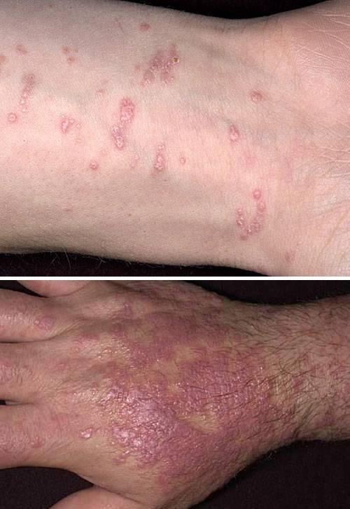 Красный лишай — признаки, проявления, описание, причины появления и эффективные методы быстрого лечения (90 фото)