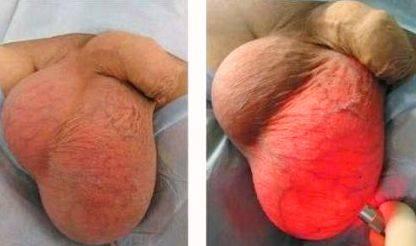 Как выглядит яичко после операции варикоцеле