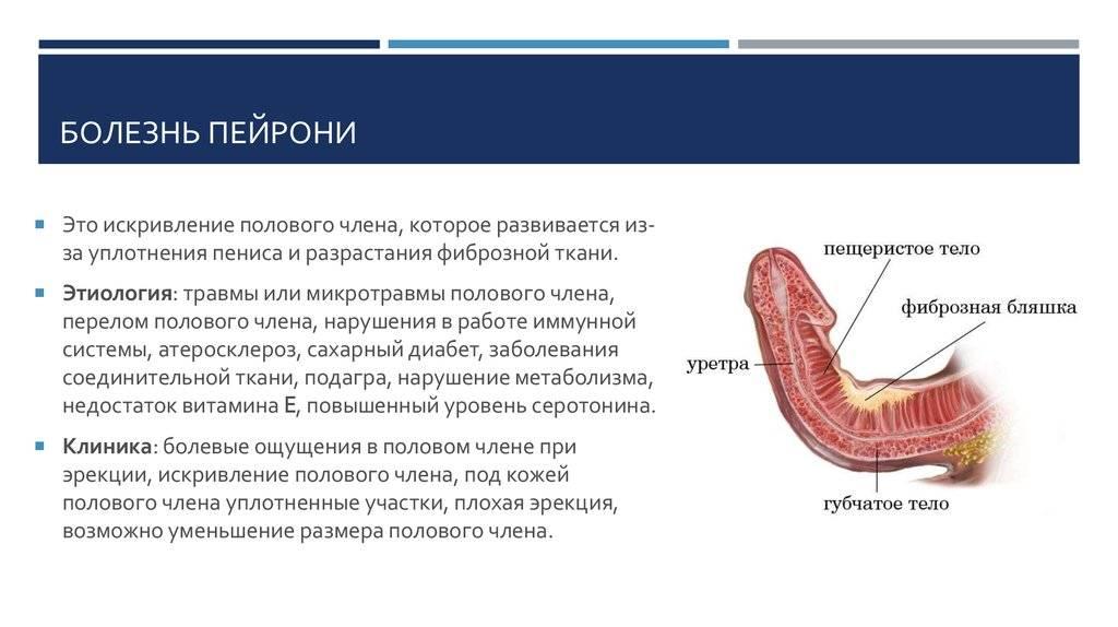Причины болезненной эрекции и методы коррекции состояния