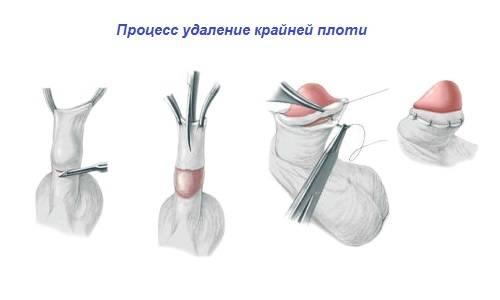 Что делать если порвалась уздечка на головке члена