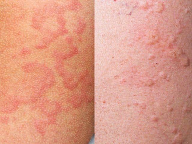 Высыпания на коже при заболеваниях кишечника и органов жкт