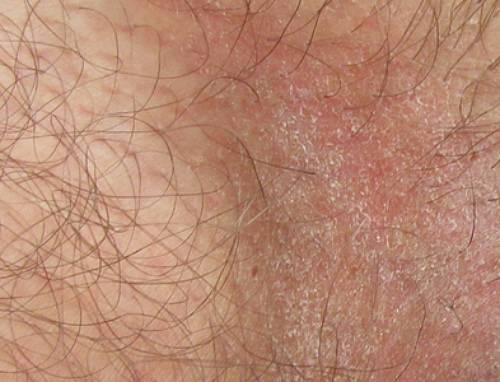 Почему шелушится кожа на половом члене и что делать?