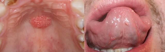Борьба с папилломами во рту и профилактика заболевания