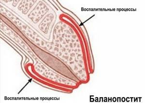 Восстановление после обрезания, перевязка и уход, последствия: отек, гематома,