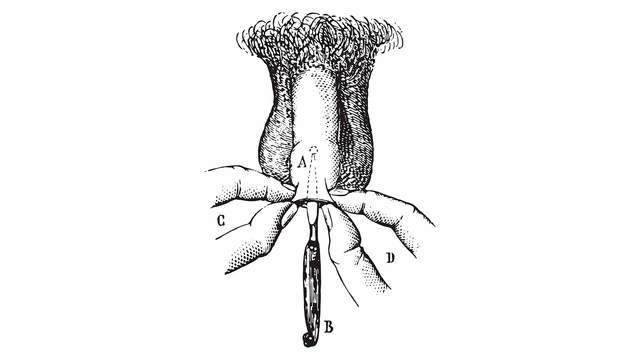 11 причин болей в половом члене во время секса и при эрекции