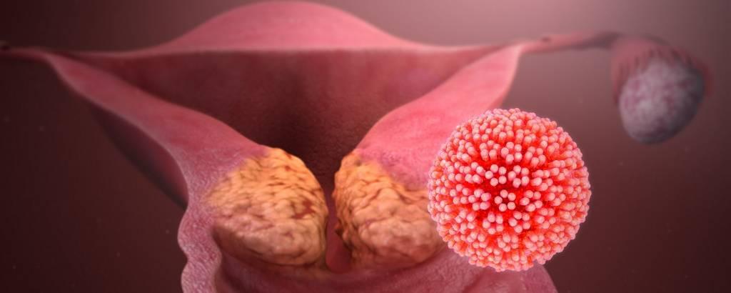 Вирус папилломы человека - можно ли его вылечить и как