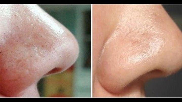 Черные точки на носу: как избавиться дома