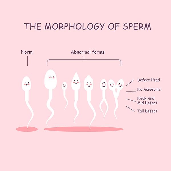 Какая связь между приемом антибиотиков и сдачей спермограммы