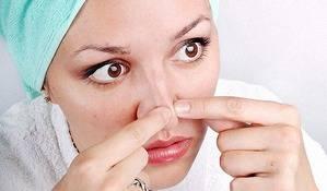 Черные точки на носу — комедоны и угри: причины появления и методы устранения. как избавиться от черных точек на носу и на лице в домашних условиях?