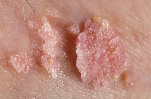 Папилломы: виды, причины появления, особенности диагностики и лечения