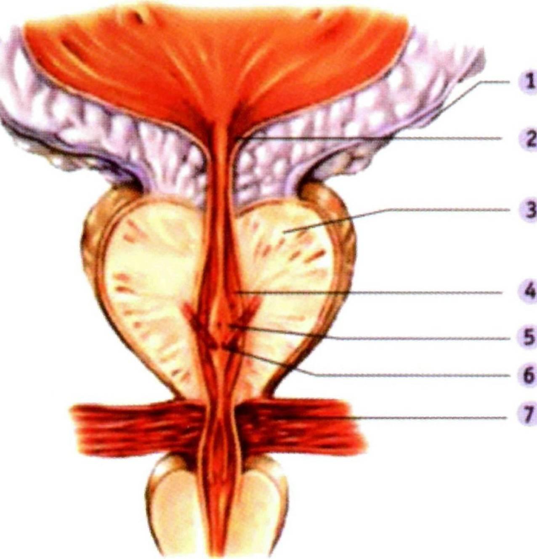Рак предстательной железы 2 степени