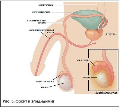 Трихомонадный уретрит: причины, диагностика, симптомы и лечение