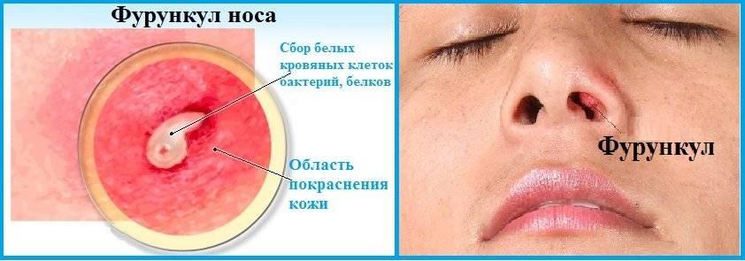 Причины и лечение фурункулов в носу