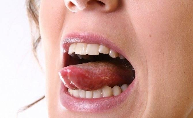 Воспаление крайней плоти у мужчин: причины и лечение в домашних условиях