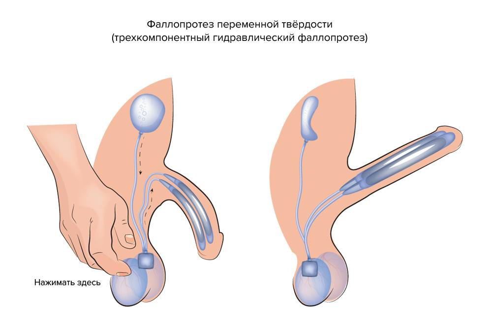 Искривление полового члена: причины, симптомы и особенности лечения