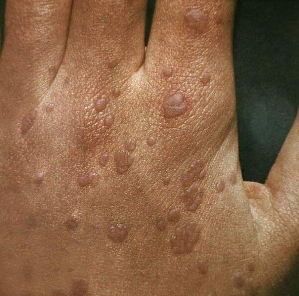 Как вылечить папилломы, появившиеся на руках