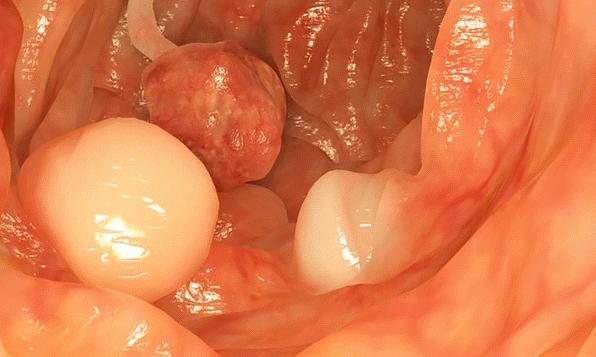 Формирование папиллом на слизистой кишечника