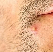 Необходимость использования антибиотиков при фурункулах