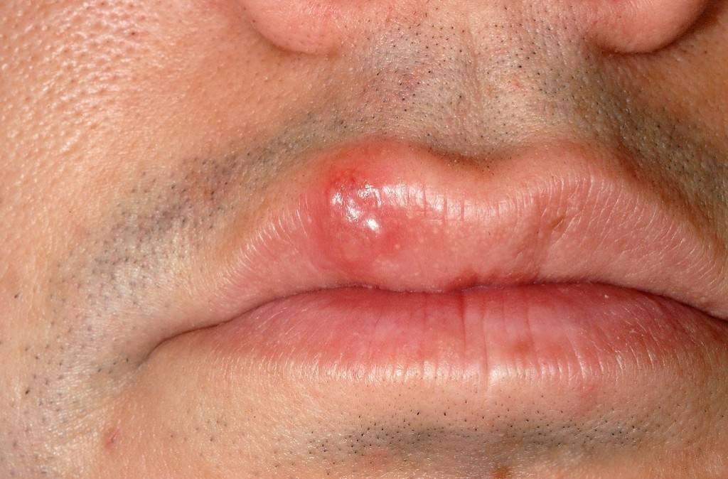 Салициловая мазь от герпеса на губах