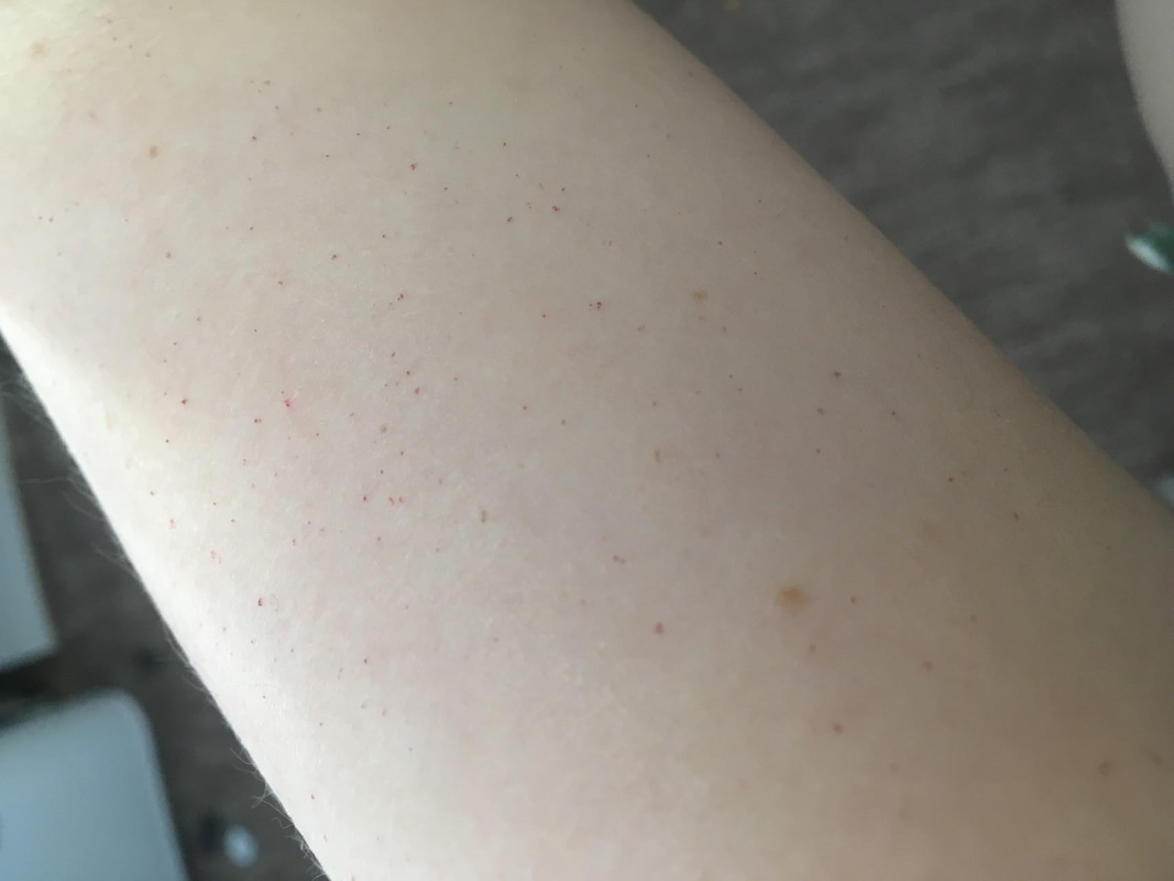 Красные точки на теле