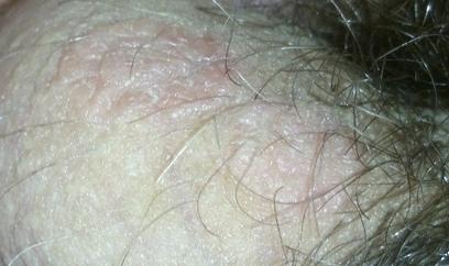 Что делать, если шелушится кожа на мошонке и появилось покраснение?