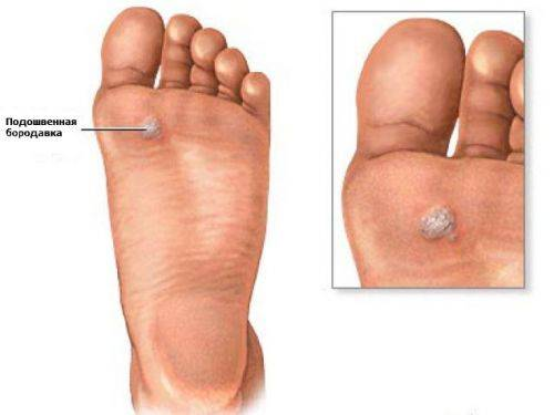 Папиллома на пятке. лечение, традиционные методы