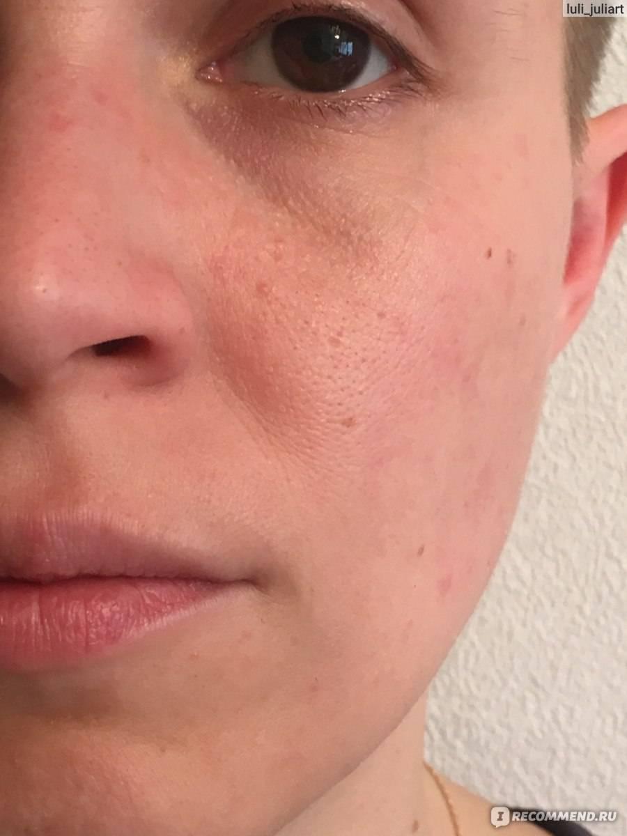 Как почистить лицо от комедонов (черных точек), не выходя из дома?