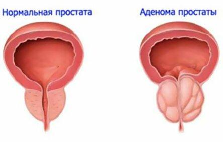 Боль и кровь при мочеиспускании у мужчин