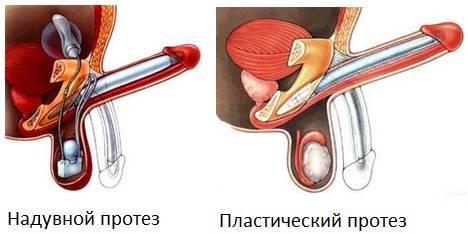 Особенности проведения операции по увеличению члена