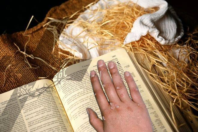 Заговоры и ритуалы на избавление от папиллом
