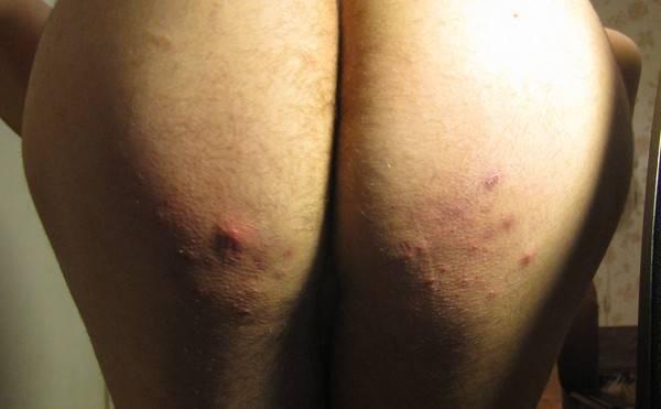 Почему на попе прыщи – причины и лечение: как избавиться и от чего появляются у женщин красные прыщики и сыпь