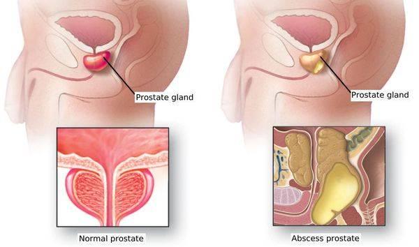 Симтомы обострения простатита у мужчин: как снять в домашних условиях, причины и лечение