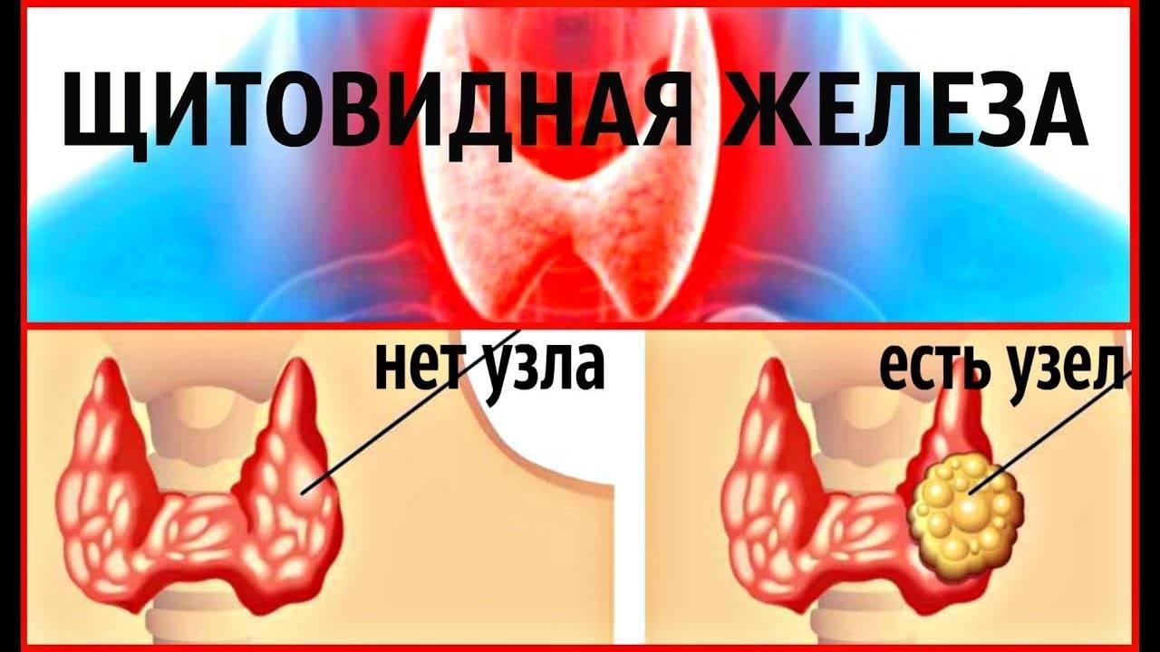 Прыщи от щитовидки лечение
