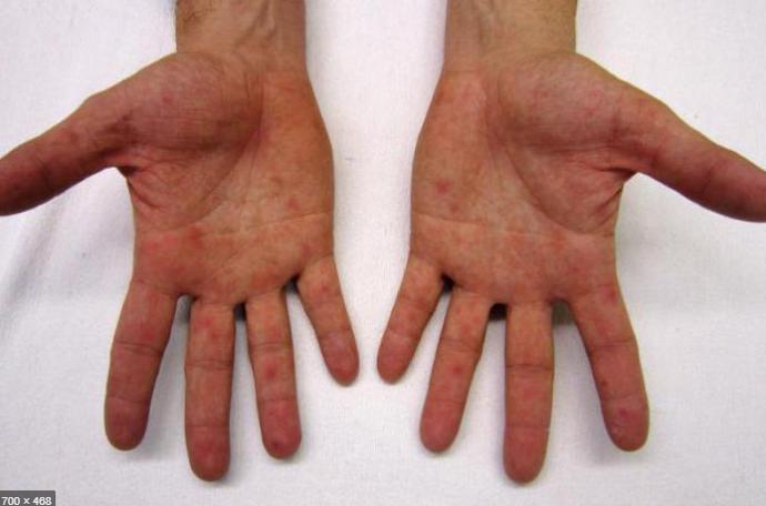 Почему на руках могут появиться мелкие пупырышки, которые чешутся