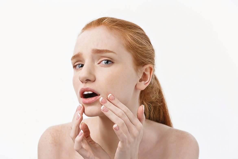 Угревая сыпь: фото, лечение