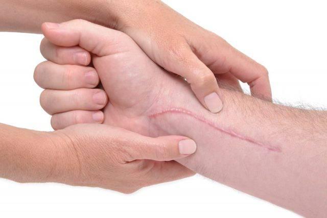 Как избавиться от шрамов постакне: топ-4 процедуры