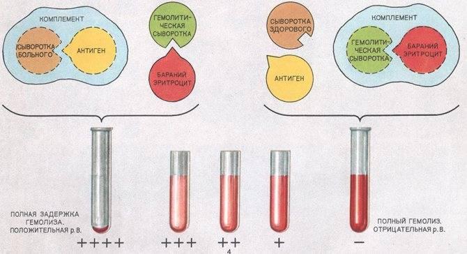 Если результат на сифилис отрицательный а антитела