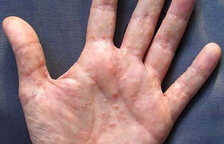 Пупырышки на руках: причины, что делать если чешутся, лечение и профилактика