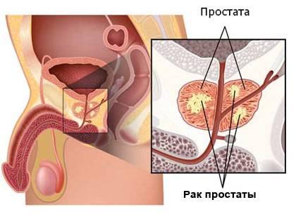 Рак предстательной железы 2 степени: продолжительность жизни