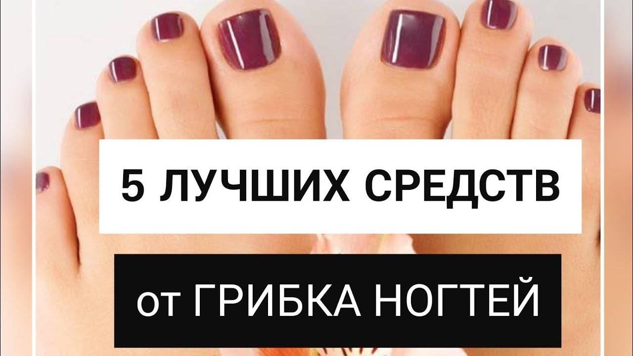 Лак от грибка ногтей на ногах: свойства и эффективность применения