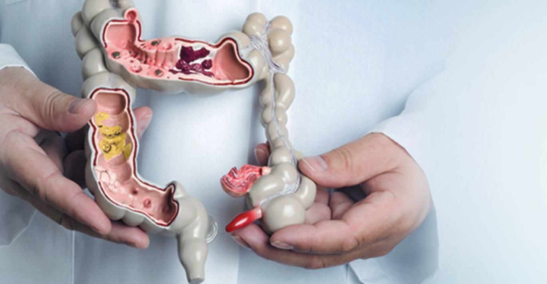 Папилломы в прямой кишке: причины, симптомы, лечение