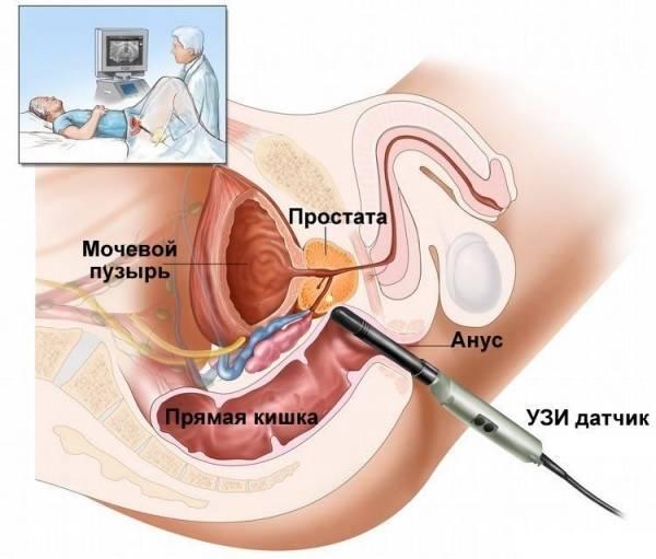 Какая должна быть простата при пальпации